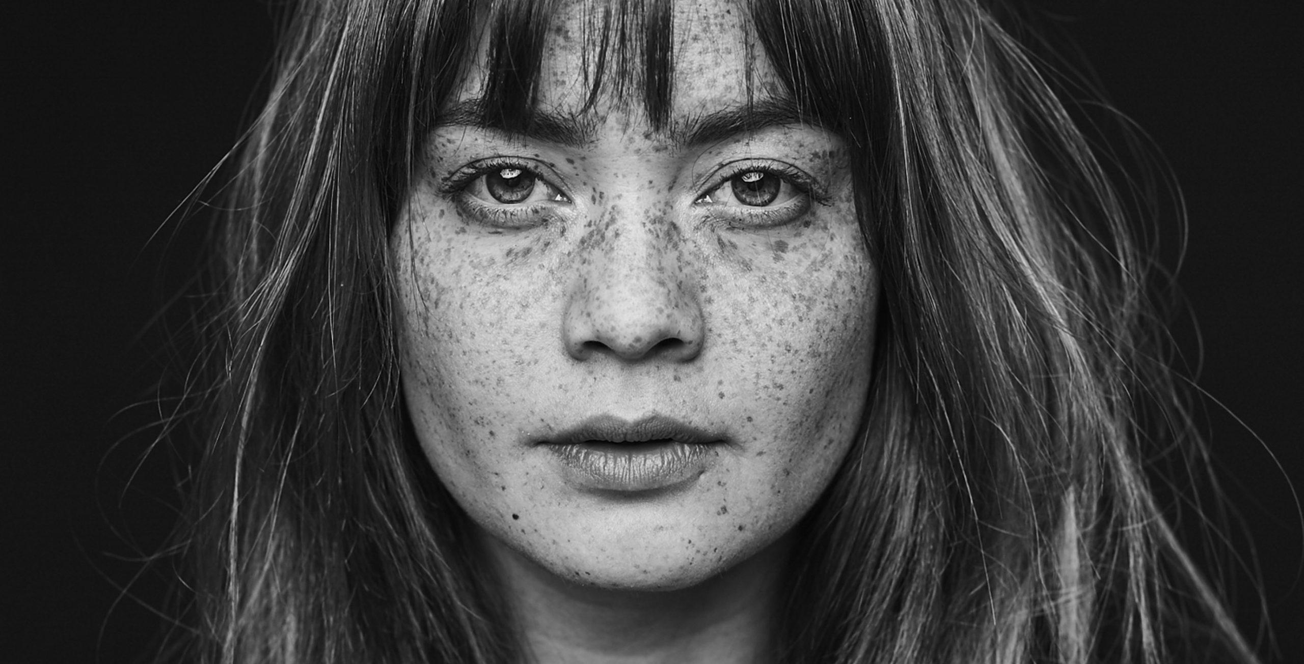 melissa van beek mlssvnbk zwart wit sproeten portret fotografie